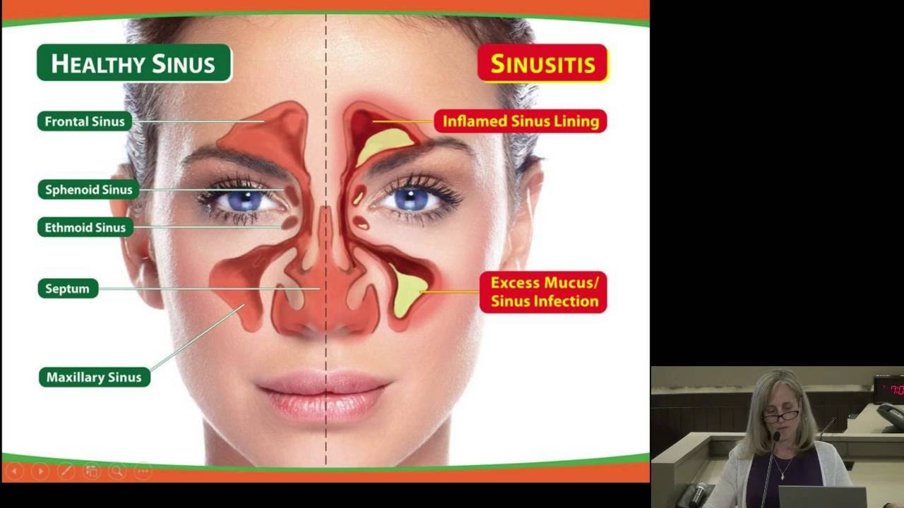 Sinusitis Symptoms and Methods of Its Treatment