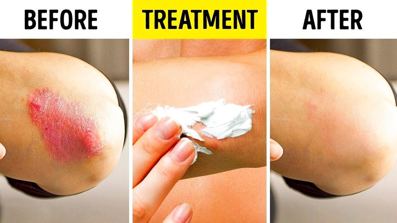 18 DIY WAYS TO TREAT YOUR BODY NATURALLY