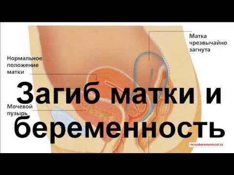 Загиб Матки и Беременность