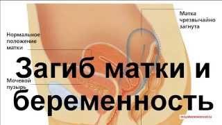 Загиб Матки и Беременность(Загиб Матки и Беременность http://moyaberemennost.ru/zagib-matki-i-beremennost.html., 2015-03-15T07:44:56.000Z)