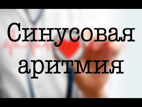 Синусовая аритмия сердца - лечение, причины, симптомы
