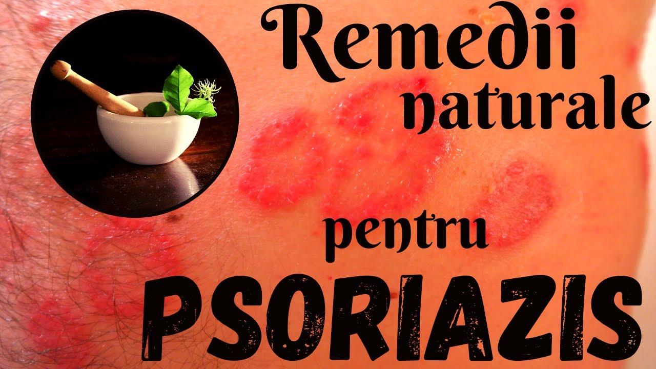 Download Cum Tratam Natural Psoriazisul / How to Treat Psoriasis Naturally [Eng.Sub.]