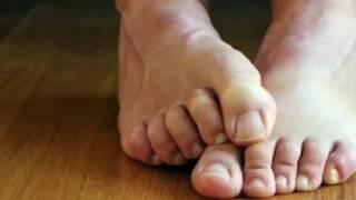 Ardor pies y picazon delos los en dedos