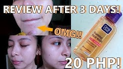 hqdefault - Facial Wash For Acne Prone Skin Philippines