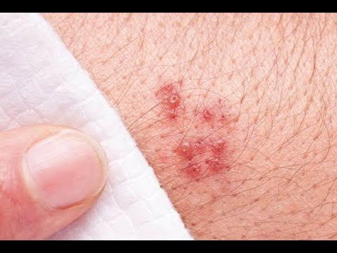 What are the Symptoms of Genital Herpes in Men and Women