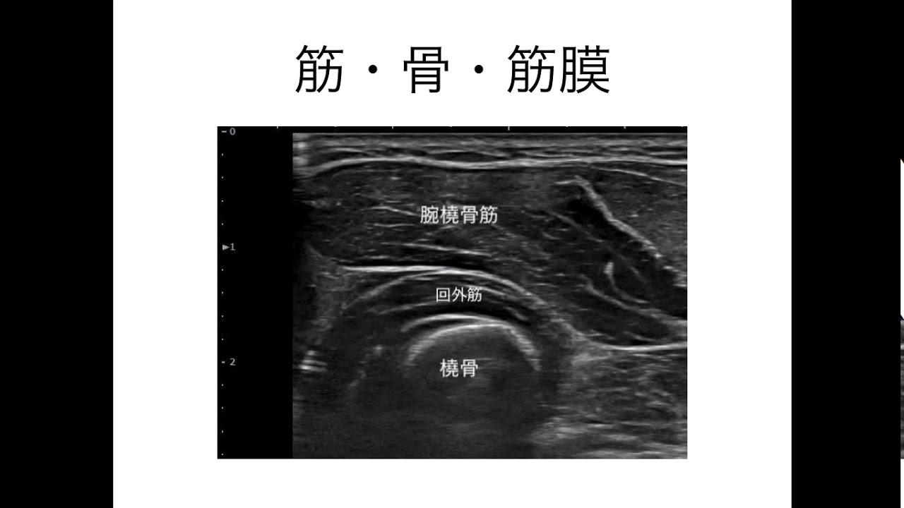 筋膜はがし 筋膜リリース エコーが徒手療法に役立つ理由 - YouTube