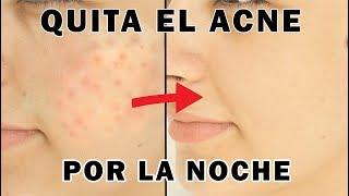 ELIMINA El acné y sus Marcas Mientras Duermes | Cómo Quitar Granos TRATAMIENTO NATURAL