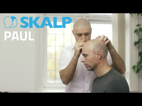 Scalp Micropigmentation by Skalp® Paul Connolly - Celebrity Fitness Trainer to the Stars