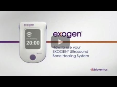 How to Use your EXOGEN Ultrasound Bone Healing System - U.S. Release