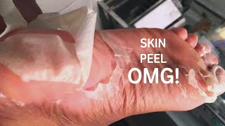 I tried a Foot Peel Mask & The results?! 😱😱😱 | Healing Cracked Heels!!