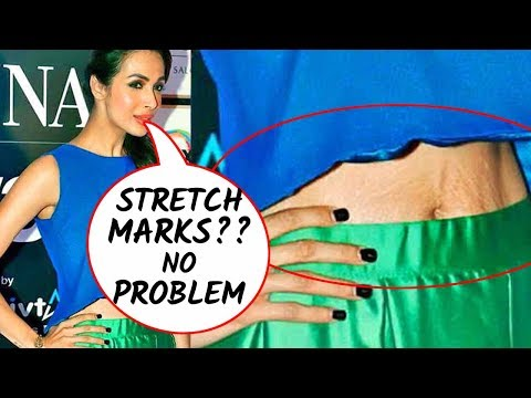 5 Bollywood actresses flaunting their stretch marks!