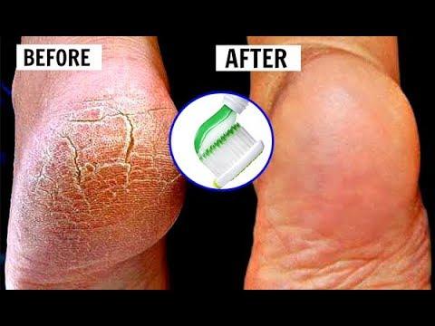 Mẹo Làm Đẹp – Cách trị nứt gót chân tại nhà cực hiệu quả bằng kem đánh răng