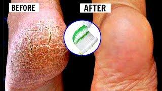 Mẹo Làm Đẹp - Cách trị nứt gót chân tại nhà cực hiệu quả bằng kem đánh răng