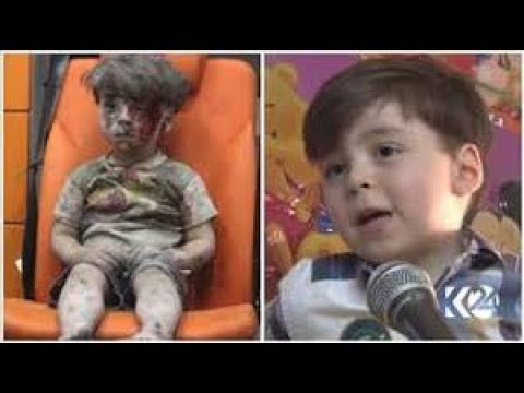 UPDATE: Syria & Aleppo Boy. What Fake News Won't Show You. MUST WATCH!