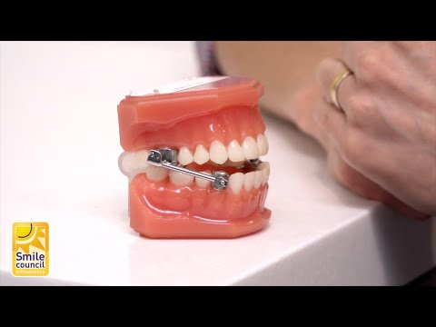 During Orthodontic Treatment | What You Need to Know | Smile