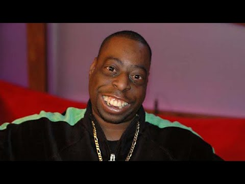 Beetlejuice Gets New Teeth Howard Stern Show Part 1 Youtube