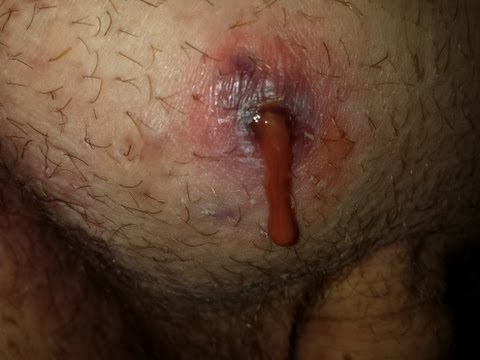 Pus, Boil, Cyst, blood, squirt