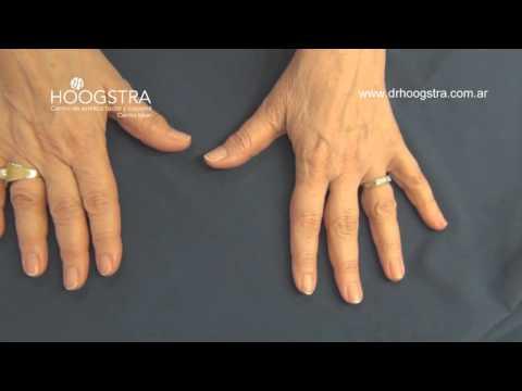 Onicomicosis en uñas de las manos (15113)