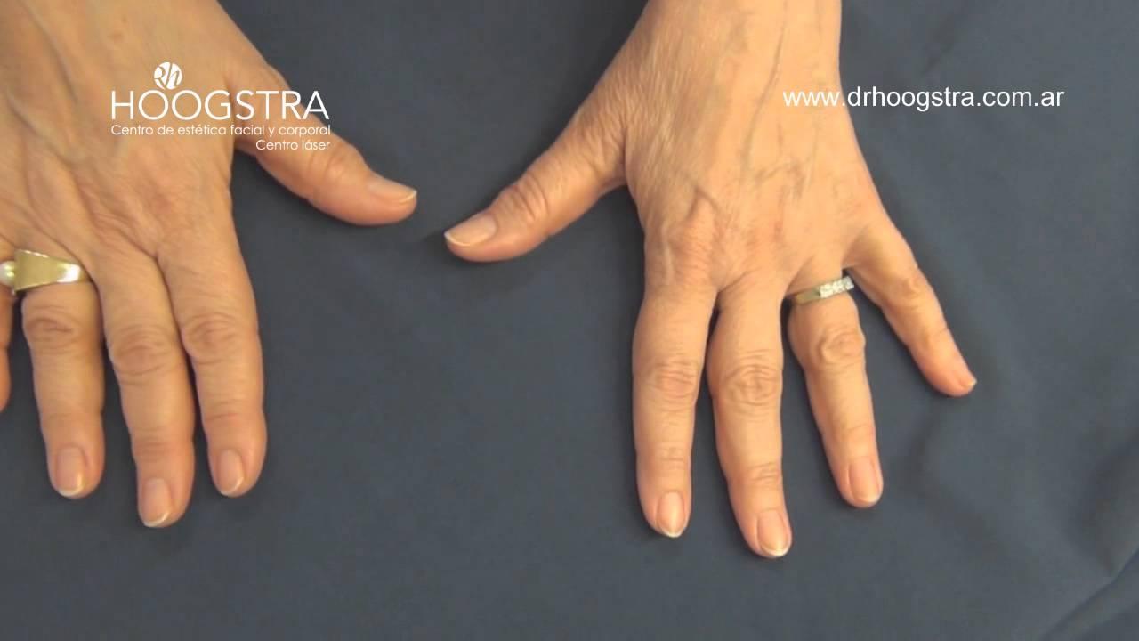 El hongo a las uñas en el pie