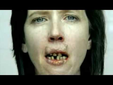 Mouth Cancer Anti-Smoking Ad
