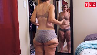 This Woman Is Proud Of Her Weight Loss But Haunted By Her Excess Skin