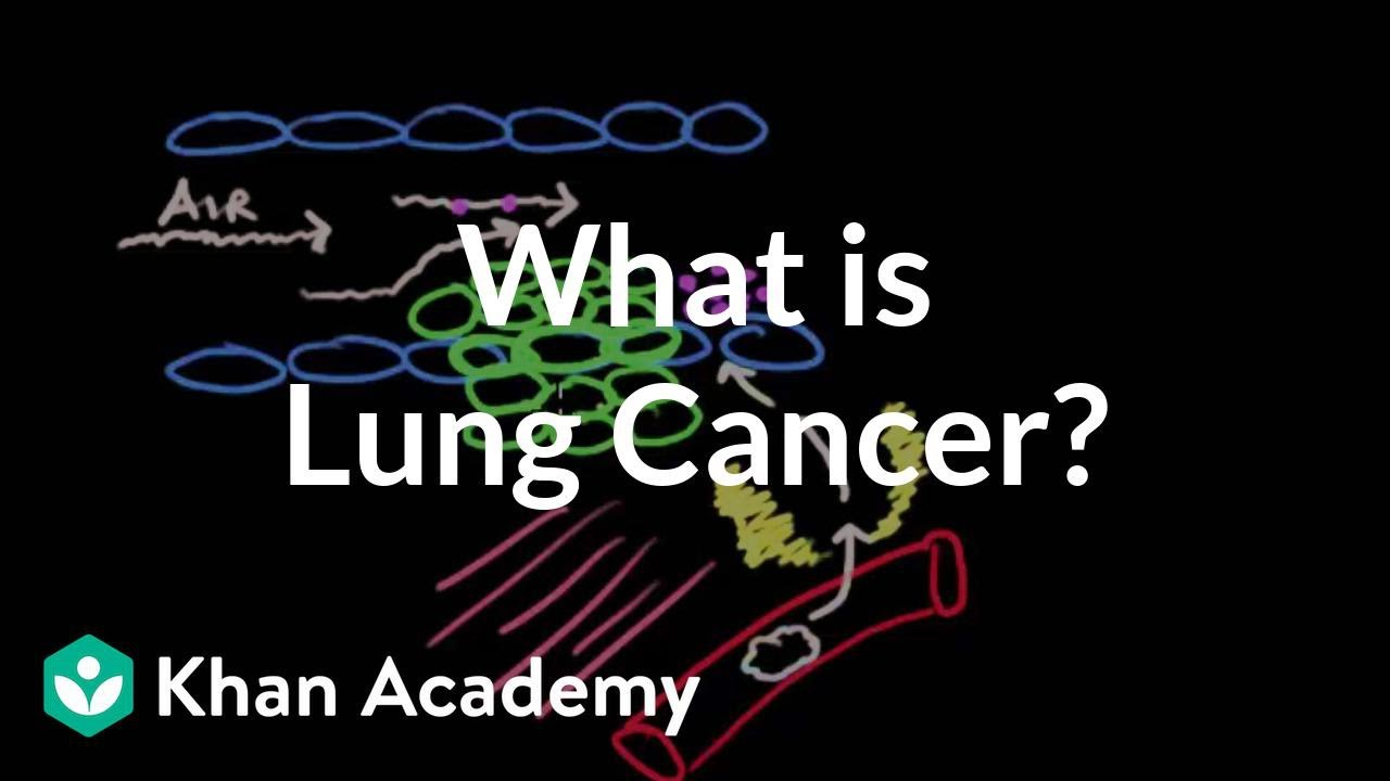 f4114d78ecf What is lung cancer? (video) | Lung cancer | Khan Academy