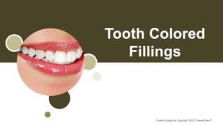 Tooth-Colored Fillings in Katy, TX - McCulloch-Wilson Dental