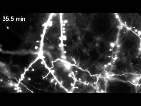 Actin motility in dendritic spines