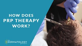 Platelet-Rich Plasma for Hair Loss | PRP Therapy in Tyler, TX