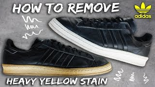 EFFECTIVE AND AFFORDABLE YELLOW STAIN REMOVAL || HOW TO AND TUTORIAL