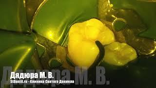 Реставрация зуба 46 с применением опрерационного микроскопа