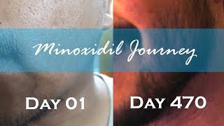 Asian/Filipino Minoxidil Journey: MY JOURNEY (PHOTOS)