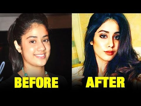 Download Has Sridevi's Daughter Jhanvi Kapoor Done A Nose Job ?