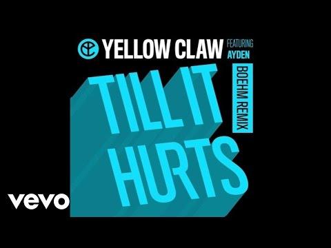 Yellow Claw - Till It Hurts (Boehm Remix / Audio) ft. Ayden