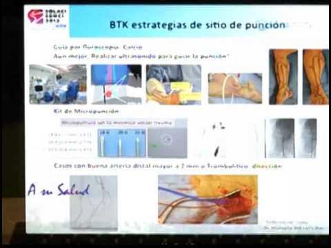Cardiologia Dr. Cvirgen nos habla sobre Enfermedad Arterial Periferica y Diabetes