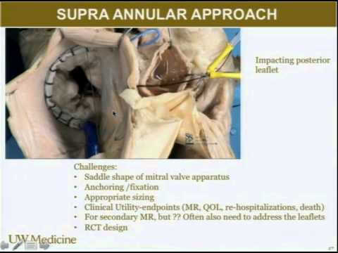 Structural Heart Disease: Evolution of Medical Device Therapy