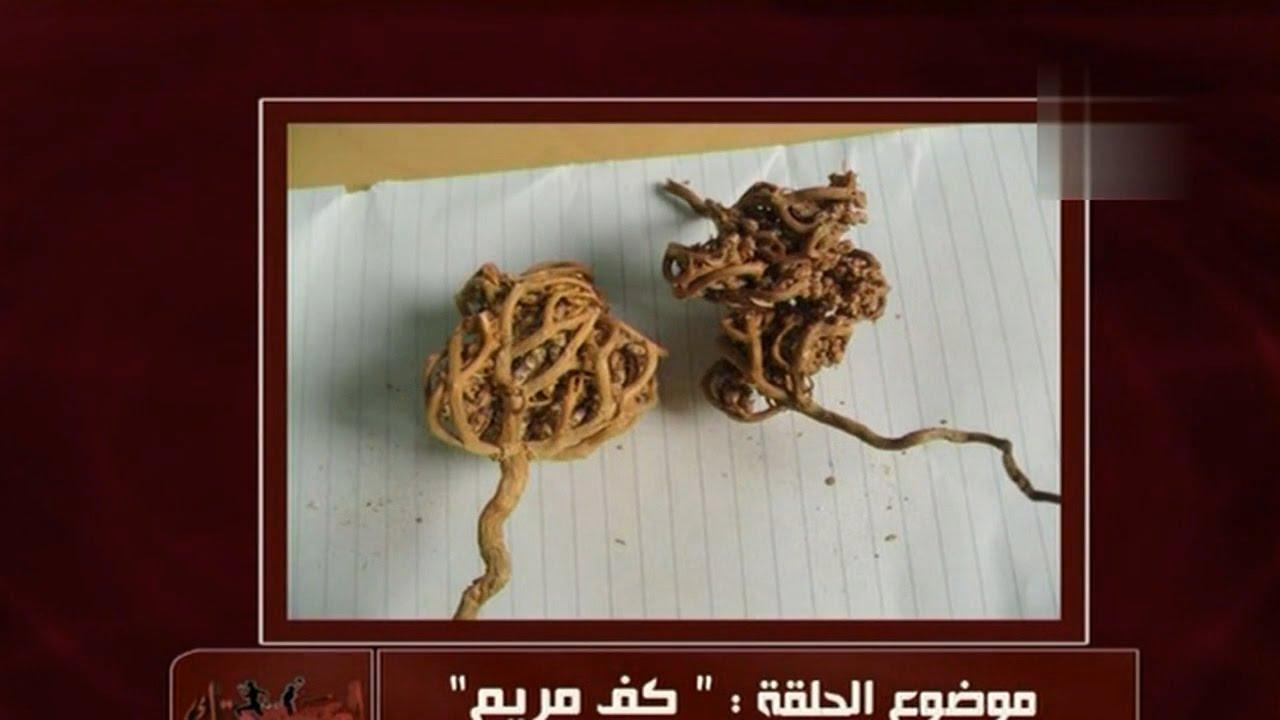 فوائد عشبة كف مريم وطريقة استخدامها | الدكتور أمير صالح