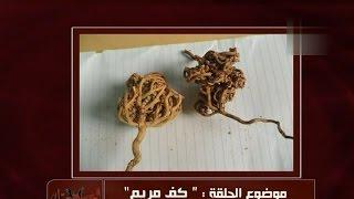 عشبة كف مريم | الدكتور أمير صالح | خمسة لصحتك