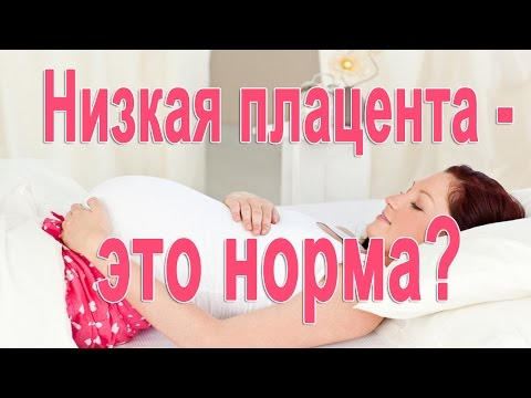 Низкая плацентация при беременности.