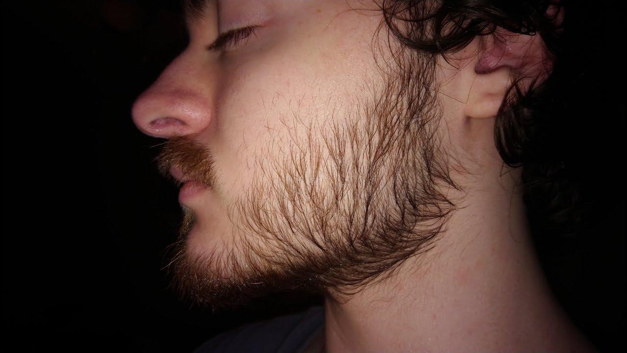 Minoxidil For Beard Growth Day 266 38 Week Progress Youtube