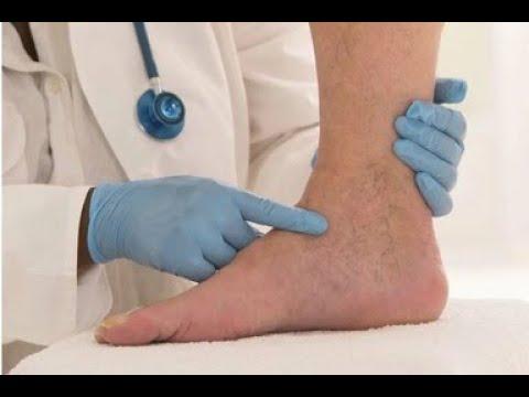 Тромб в ноге: не пропустить первые симптомы