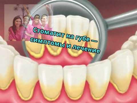 Стоматит на губе — симптомы и лечение