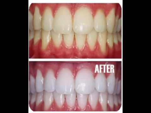 Polanight Teeth Whitening Gels Where To Buy Cheap Online
