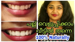 💯 പല്ല് വെളുപ്പിക്കാം  ||Working Natural Home Remedies for Teeth Whitening||SimplyMyStyle Unni||