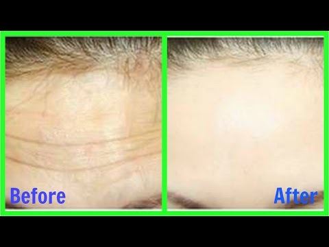How to Remove Wrinkles from Face & Forehead naturally || Home Remedy