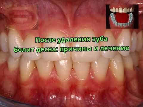 После удаления зуба болит десна: причины и лечение