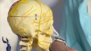 видео Невралгия тройничного нерва – симптомы и лечение