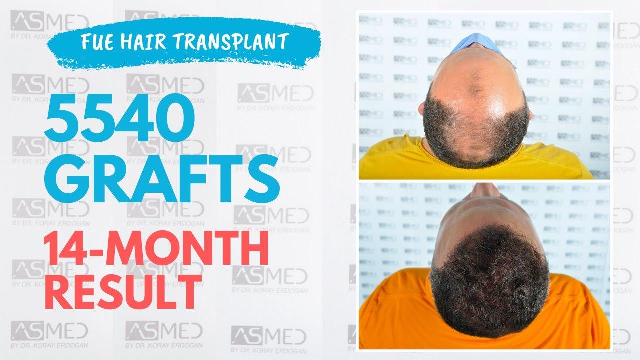 ASMED-Koray Erdoğan(0-12 months) Hair Transplant Result 5146 grafts FUE