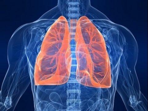 Plaučių Uždegimas: Simptomai, Priežastys Ir Eiga (pokalbis Studijoje) HD