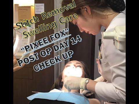 Pixee Fox Korea Plastic Surgery Review / Post-surgery treatment
